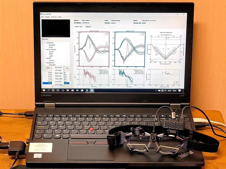 めまい診断装置「vHIT」。 内耳性めまいの中で「前庭神経炎」は、嘔吐を伴う激しいめまいが特徴的な急性の病気です。 当院で2019年に導入した新しい診断装置である頭振刺激眼振計測装置(vHIT)は、前庭神経炎を迅速に診断するための機器です。 高速ビデオカメラを用いたゴーグルを装着させて眼球の動きを記録し、解析用PCで「前庭眼反射」という眼の動きを測定して数値化する装置です。 vHITにより三半規管の障害、前庭神経の障害を定量化して評価することが可能となり、前庭神経炎はもちろんのこと、メニエール病などの激しいめまいにおいても有用性の高い機器です。 メーカーさんによれば、鹿児島県内では当院が最初に導入した施設であり、2021年6月までに650例の検査を施行しております。 日本めまい平衡医学会認定めまい相談医として、今後もめまいの専門的診療を行ってまいります。